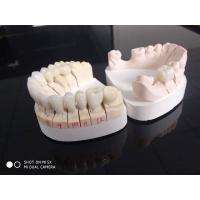 Hospital , Clinic Dental Crown Lab Doing Cases With 3D Digital Work Manufactures