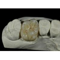 Flexible Porcelain Dental Crown For Back Teeth Restoration ISO Certification Manufactures