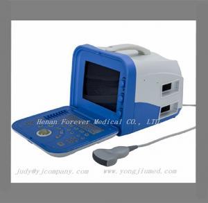 lcd  Laptop Ultrasound B/W Ultrasound Equipment VET Portable Ultrasound Manufactures