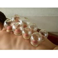 Vacuum Cupping Therapy 6 cups Manufactures