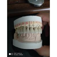 1M1 Vita Shade Full Zirconia Dental Crown Lab Fabricating Dentures To Worldwide Clinics Manufactures