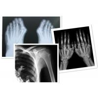 Thermal Digital X Ray Film Fuji Medical For Radiography Examination Manufactures