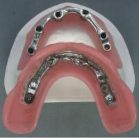 High Retention Bar Attachment Metal Based Dentures For Comestic Defects Implants