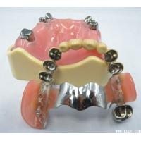 Telescopic Overdenture Precision Attachments In Dentistry With Palladium Silver Material Manufactures