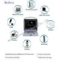 China Portable Ecografo 4D Color Doppler Ultrasound Machine, Portable Echo Ultrasound Scanner on sale