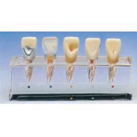 Clinical Tooth Disease Series Model about 5 Parts for Dental Schools Training Manufactures