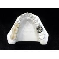 Ultra Hard Porcelain Dental Crown Health Safety High Density Digitization Design Manufactures