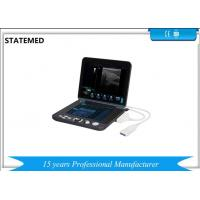 Black And White Laptop Portable Ultrasound Scanner For Diagnostic Manufactures