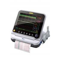 """China Portable 3 Parameters 12.1""""maternal fetal heart monitor 152mm wide paper with thermal printer on sale"""