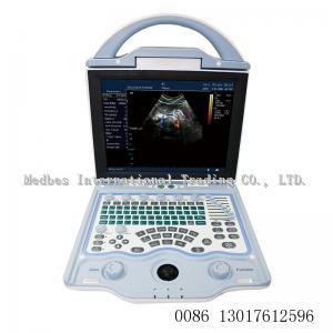 China Medical Equipment Full Digital vet veterinary color doppler ultrasound price animal ultrasound machine on sale