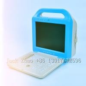 China Medbes Full Digital Ultrasound Scanner Machine Price on sale