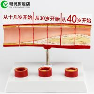 China Heart Vascular Cholesterol Model Human Heart Medical Teaching Anatomical on sale