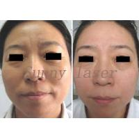 Quality Adjustable Pixel Co2 Fractional Laser Skin Peeling Resurfacing Machine with LCD for sale