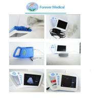 Quality Full Digital Palm Ultrasound Scanner Ultrasonuic (YJ-U100) for sale