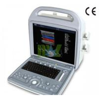 China Portable 3d ultrasound machine price - MSLCU06 on sale