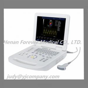 Notebook Color Doppler Portable Ultrasound Portable Diagnostic Equipment Manufactures