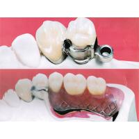 No Allergy Teeth Dental Precision Attachments High Retention FDA ISO9001 Certification Manufactures