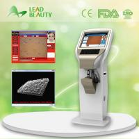 skin analysis machine
