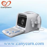 China China portable portable diagnostic ultrasound machine price with real vaginal pictures on sale