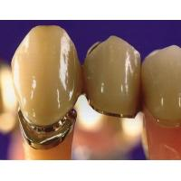 Gold Composite Nanogold Captek Crown Tooth Bridge For Dental Clinic High Strength Manufactures