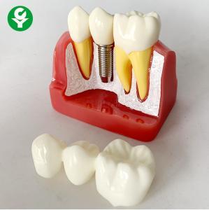 Anatomical Patient Education Models Dental / Teeth Demonstration Model Manufactures