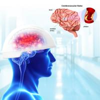 810nm Neurofeedback Therapy Machine Transcranial Magnetic Brain Stimulation Infrared Manufactures