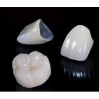 Beautiful Dental Crown Lab PFM Bridge And Caps For Teeth No Side Effect Manufactures