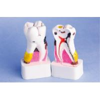 Enlarged Pathological Human Teeth Model / CE / ISO / CIQ anatomical tooth model Manufactures