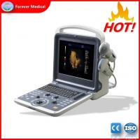 Great Performance 3D/4D Color Doppler Ultrasound Manufactures