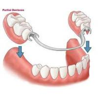 China Superior Restoration Effect of Removable Partial Denture With Custom Shade Porcelain teeth on sale