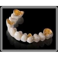 Quality Captek Gold Dental Crown Lab On All Teeth Good Biologycial Strong Restoration for sale