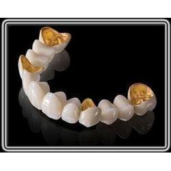 Quality Captek Gold Dental Crown Lab On All Teeth Good Biologycial Strong Restoration for sale