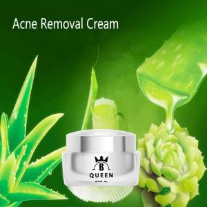Aloe Vera Moisturizing Skin Anti Aging Dark Spots Whitening Acne Removing Cream For Woman Manufactures