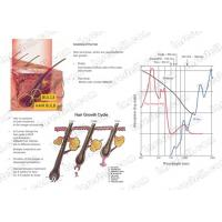 Buy cheap 755nm Alexandrite Laser Machine Hair Removal 60x65mm Spot Size AlexMED from wholesalers