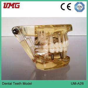 Dental education models of restoration model Manufactures