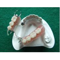 China Dental Magnet Precision Attachment with Flexible Partial Denture Base on sale