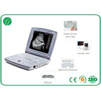 China Intelligent TGC Control B Mode Ultrasound Scanner , medical ultrasound machine in pregnancy on sale