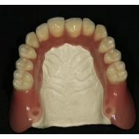 China Acrylic Partial Removable Denture/Dental Supply on sale