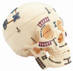 Cranio-Maxillofacial Repair System (Bone Plate) Manufactures