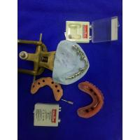 Improve Bitting Force Implant O Ring Attachment For Tooth Supported Mandibular Overdenture