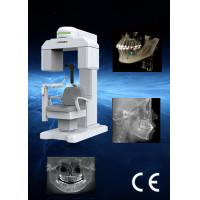 Flexible FOV Dental CBCT  Machines , 3d cone beam tomography