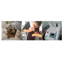 Christmas Promotion! Beijing Sanhe manufacturer portable q switched nd yag laser tattoo removal
