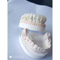 Crown & Bridge Fabricating Dentures With PFZ Technique Offfering Full English Service Manufactures