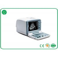 Digital Mobile B Mode Ultrasound Scanner Medical Equipment Disk C With 32MB Capacity Manufactures
