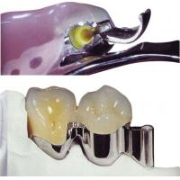 Easy Clean Precision Attachment Partial Denture For Restore Missing Teeth