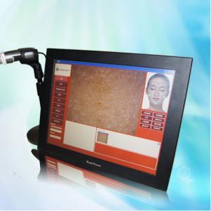 Portable 160G Auto-Digital CBS Skin Analysis Machine For Pores and Skin Pigmentation test Manufactures