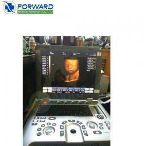 China 3d 4d portable color doppler ultrasound machine price portable ultrasound on sale