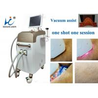 Fast Vacuum Laser Hair Removal Machine Comfortable Permanent Hair Reduction Manufactures