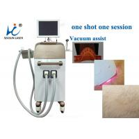 High Speed Vacuum Assisted Diode Laser Treatment For Hair Removal , Small Size