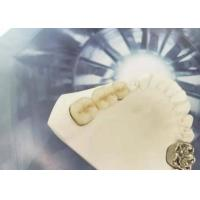 Polishing Porcelain Tooth Crown , PFM Ceramic Crown High Biological Intermiscibility Manufactures